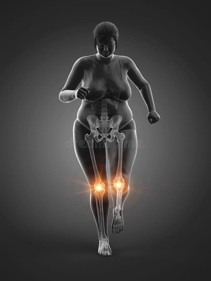 De pijnlijke verbindingen van een te zware vrouw vector illustratie