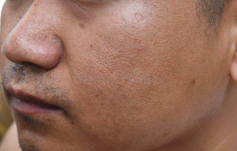 De poriën en olieachtig op het gezichtshuid van de oppervlakte jonge Aziatische mens nemen lange tijd geen zorg stock foto