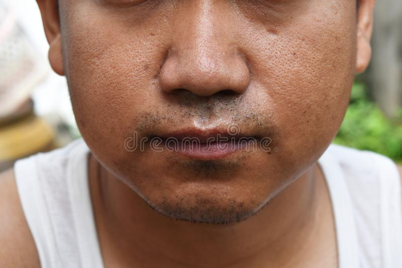 De poriën en olieachtig op het gezichtshuid van de oppervlakte jonge Aziatische mens nemen lange tijd geen zorg stock fotografie