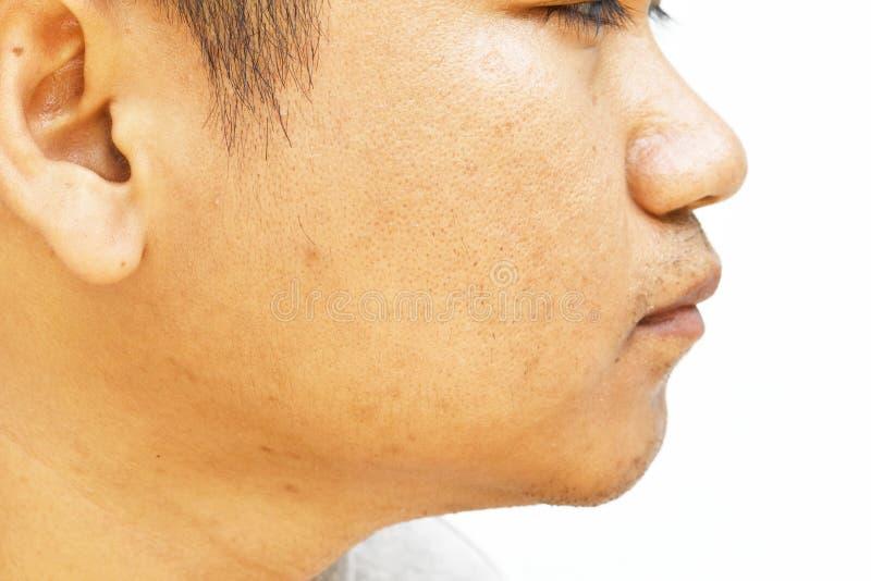 De poriën en olieachtig op het gezichtshuid van de oppervlakte jonge Aziatische mens nemen lange tijd geen zorg stock foto's