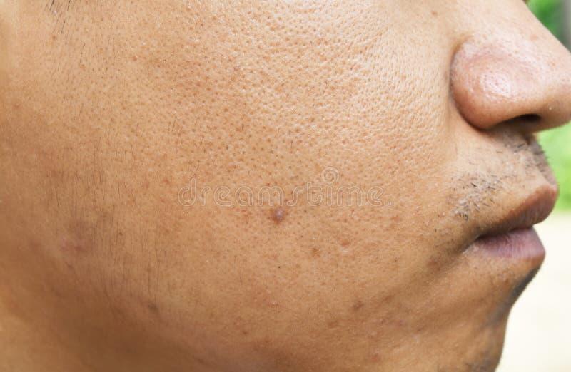 De poriën en olieachtig op het gezichtshuid van de oppervlakte jonge Aziatische mens nemen lange tijd geen zorg stock afbeeldingen