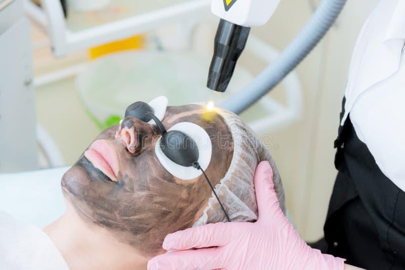 De procedure van de het gezichtsschil van de close-upkoolstof De laserimpulsen maken huid van het gezicht schoon De behandeling v stock foto's