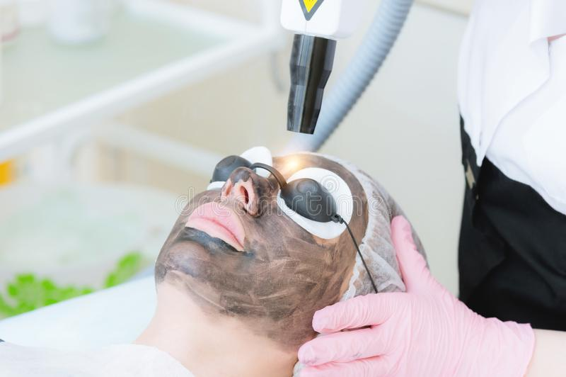 De procedure van de het gezichtsschil van de close-upkoolstof De laserimpulsen maken huid van het gezicht schoon De behandeling v royalty-vrije stock afbeelding