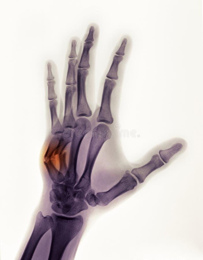 De röntgenstraal die van de hand de breuk van een bokser toont stock foto's