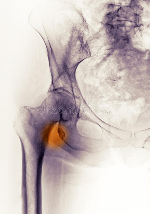 De röntgenstraal die van de heup een breuk toont royalty-vrije stock afbeeldingen