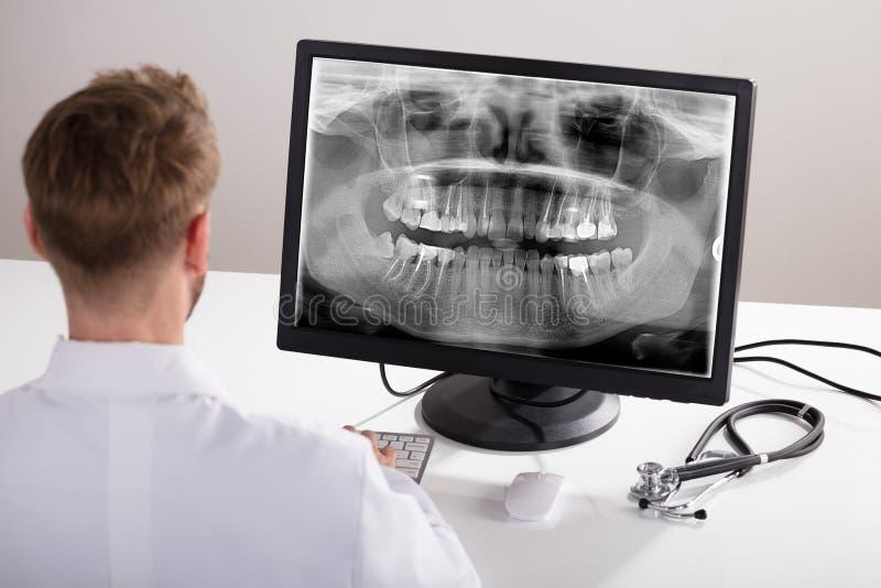 De Röntgenstraal van artsenlooking at op Computer royalty-vrije stock afbeeldingen