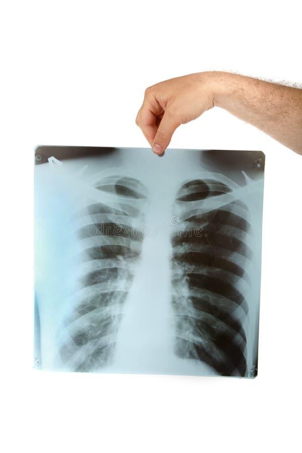 De röntgenstraal van de borst stock foto's