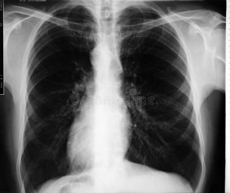 De Röntgenstraal van de borst royalty-vrije stock foto's