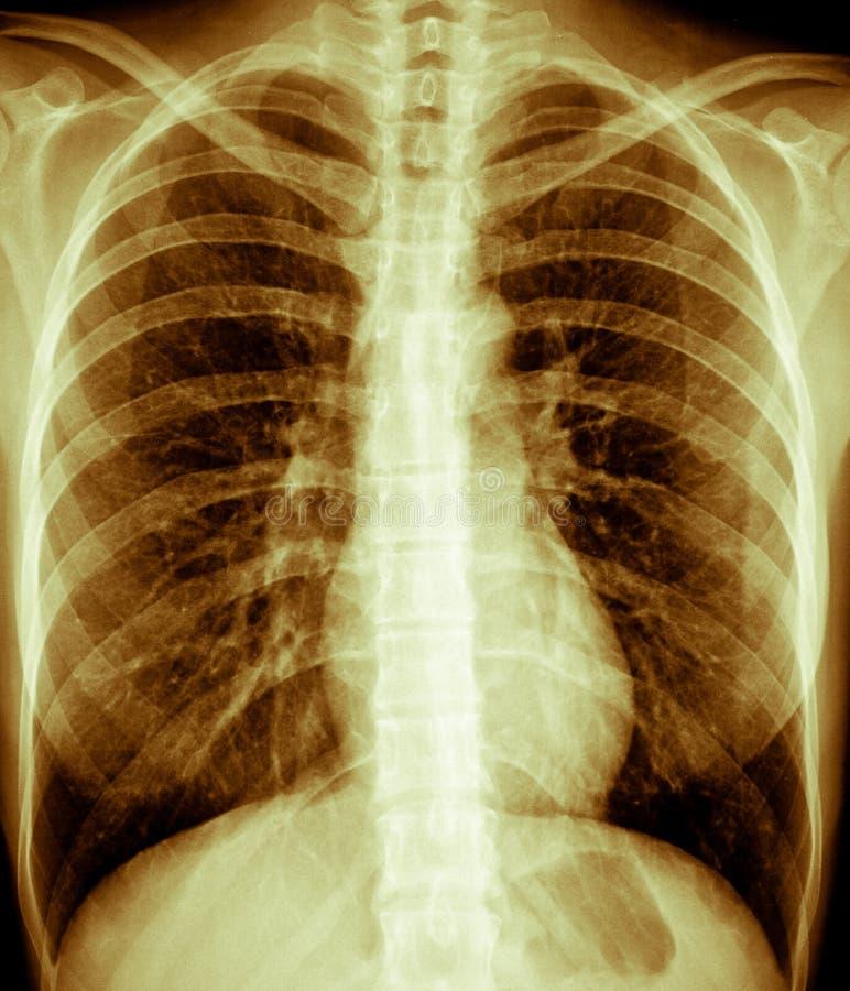 De Röntgenstraal van de borst, Wijfje royalty-vrije stock afbeeldingen