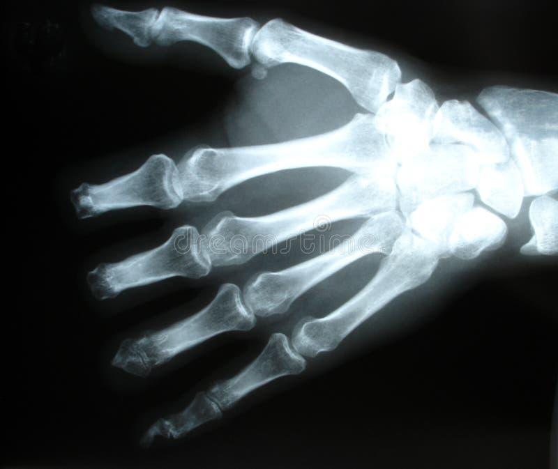 De röntgenstraal van de hand stock foto's