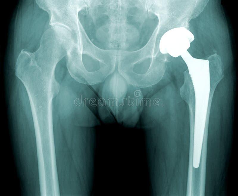 De röntgenstraal van de heup met vervanging van de verbinding royalty-vrije stock fotografie