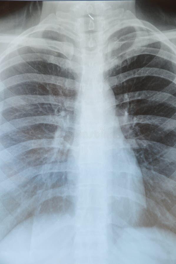De röntgenstraal van de long royalty-vrije stock fotografie