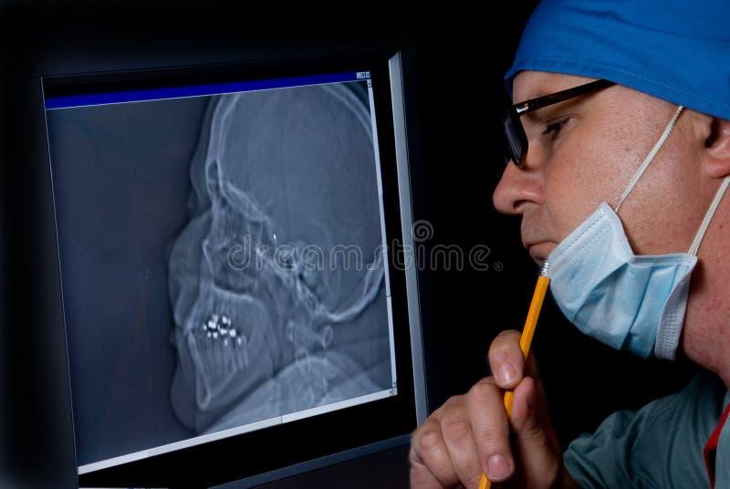 De Röntgenstraal van de schedel stock afbeeldingen