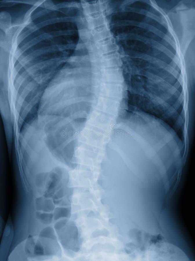 De röntgenstraal van de scoliosefilm toont ruggegraatskromming in tiener stock afbeelding