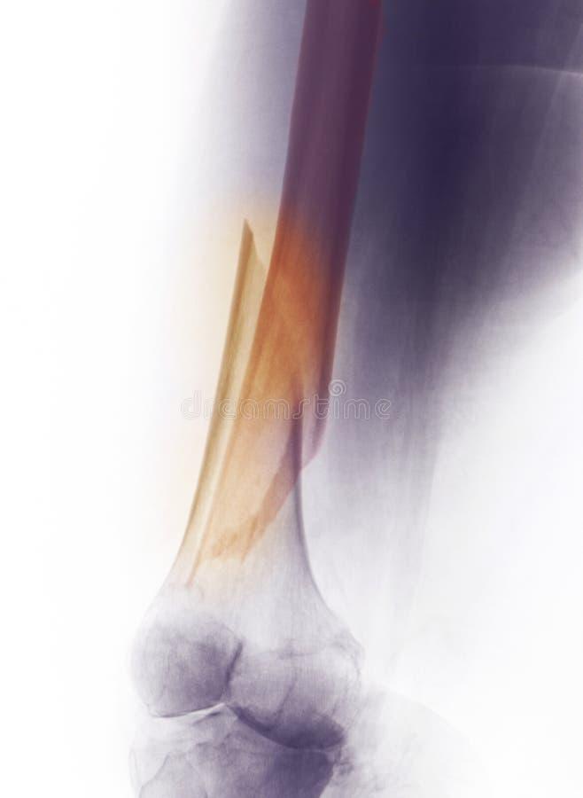 De Röntgenstraal van het been, breuk van distaal dijbeen royalty-vrije stock fotografie