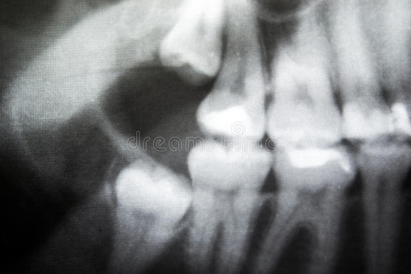 Röntgenstraal van problematische verstandskiezen stock fotografie
