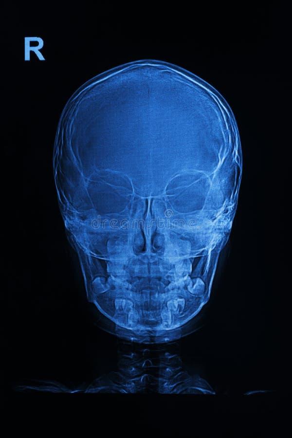 De röntgenstralenbeeld van de schedel royalty-vrije stock foto's