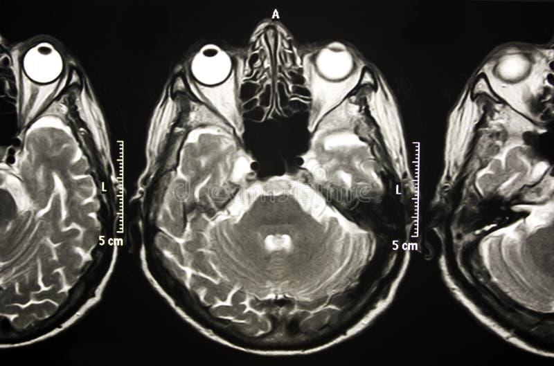 De resonancia magnética de cerebro foto de archivo libre de regalías