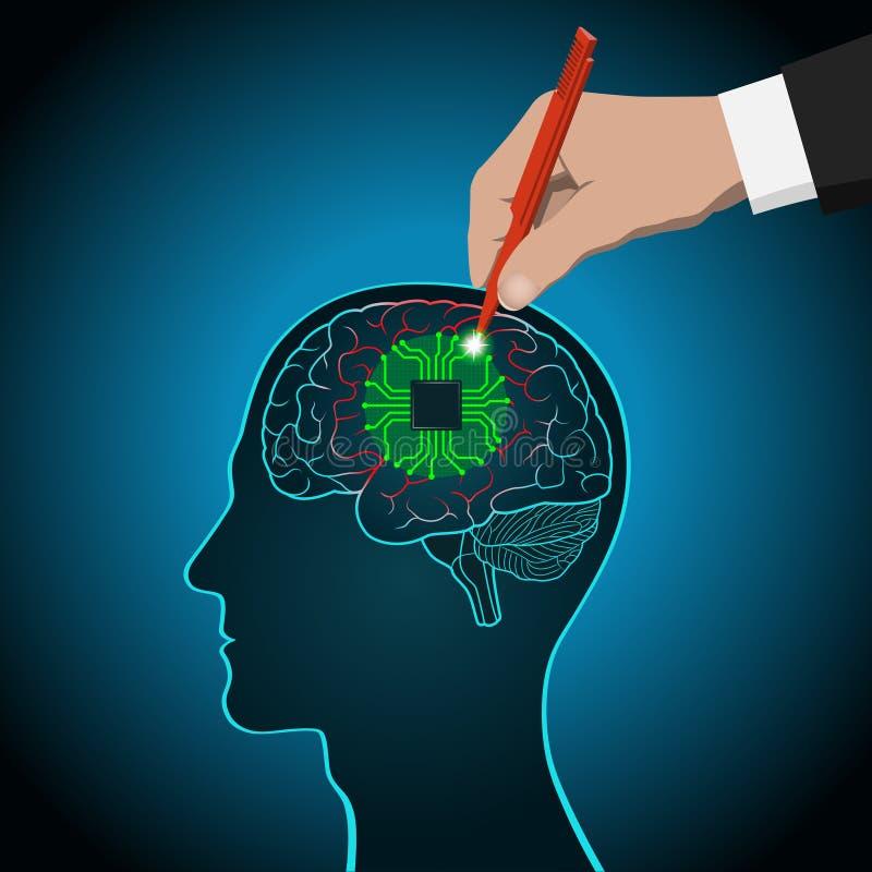 De restauratie van hersenen functioneert, prosthetics van getroffen gebieden, mening, bewustzijn, geheugen, operatie van hersenen vector illustratie