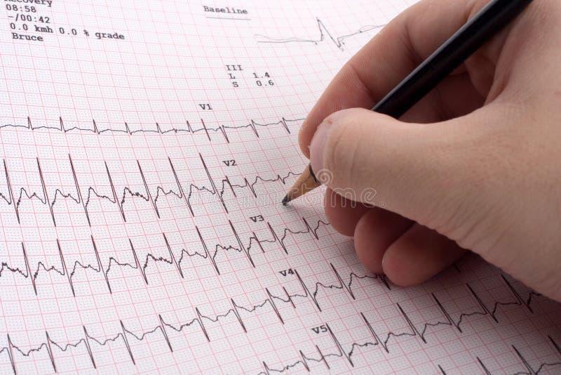 De resultaten van het electrocardiogram royalty-vrije stock afbeelding