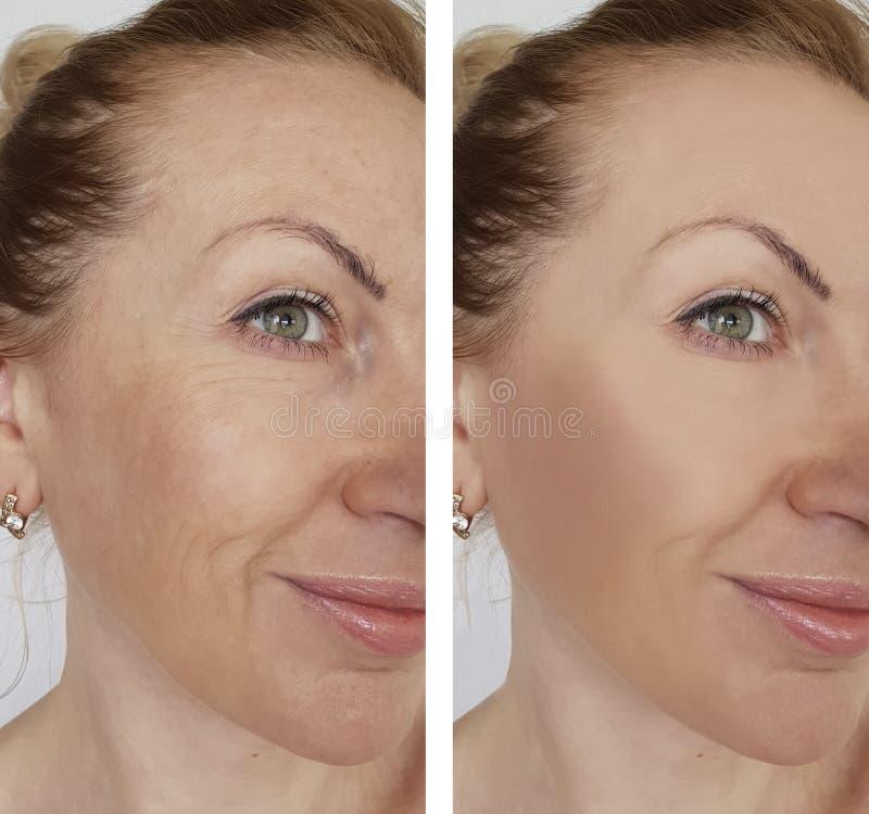 De rimpel van het gezichtsmeisje before and after effect correctie kosmetische procedures royalty-vrije stock foto's