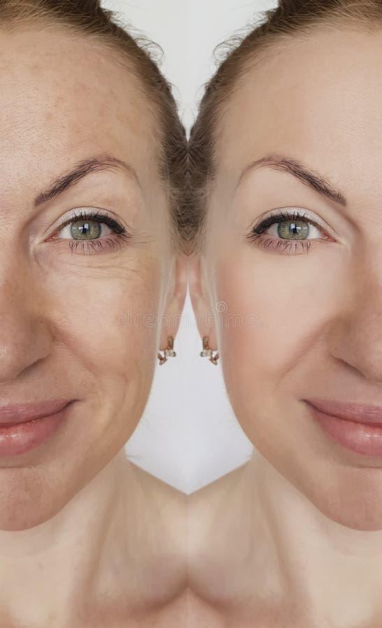 De rimpel van het gezichtsmeisje before and after effect het opheffen correctie kosmetische procedures stock afbeelding
