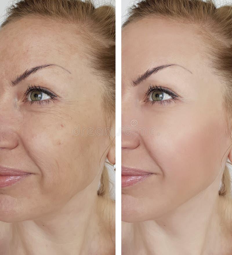 De rimpel van het gezichtsmeisje before and after het opheffen van correctie kosmetische procedures royalty-vrije stock afbeelding