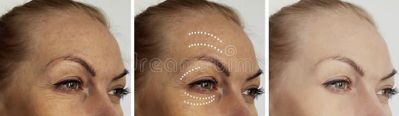 De rimpels van het vrouwengezicht voordien na therapie het hydrateren de correctieprocedures van behandelingsbiorevitalization, s stock afbeelding