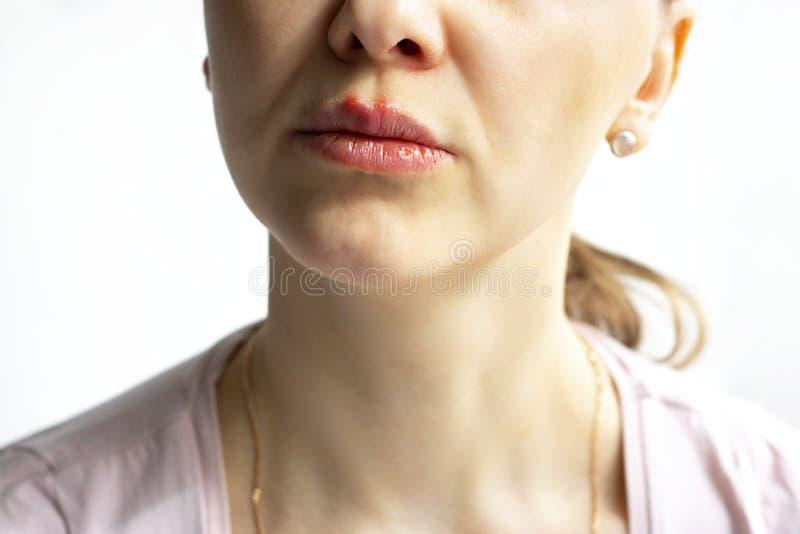 De rode bellen van virusherpes op lippen van een vrouw in lichtrose t-shirt, wordt lager deelgezicht gezien Geneeskunde, behandel stock afbeelding