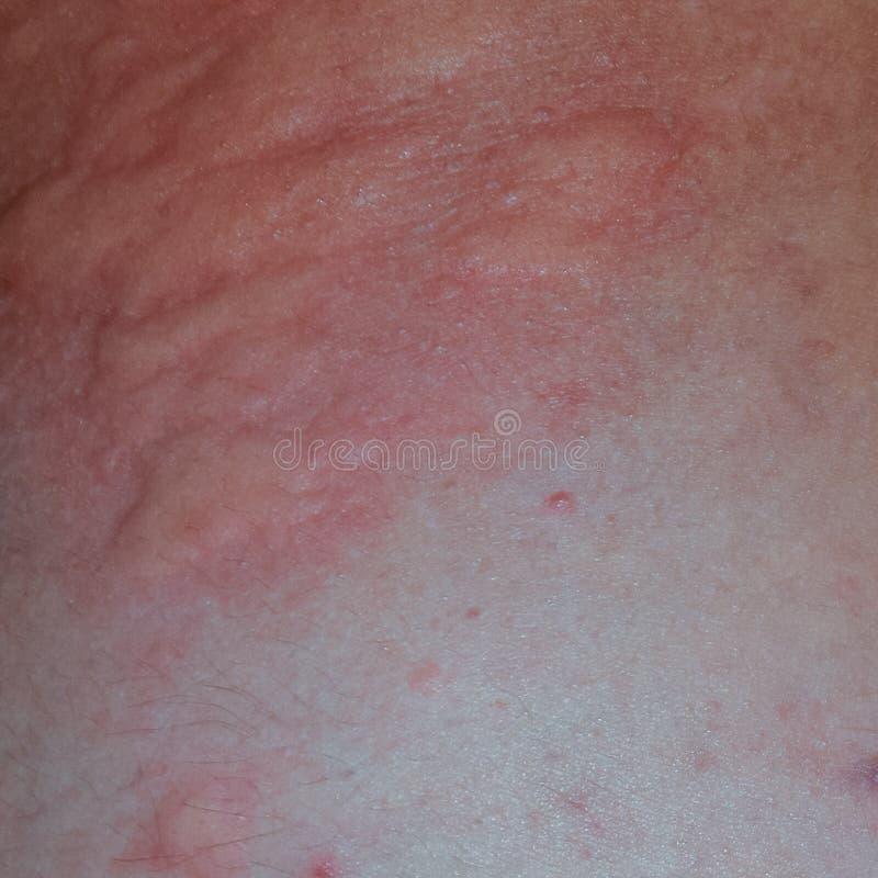 De rug en de kanten van de allergiehuid Allergische reacties op de huid in de vorm van het zwellen en royalty-vrije stock foto