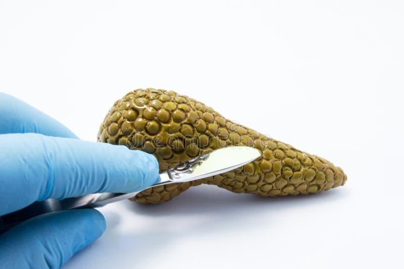 De scalpel van de chirurgenholding dichtbij alvleesklier stelt en voert verrichting of procedure in dit orgaan voor uit Concepten royalty-vrije stock afbeeldingen