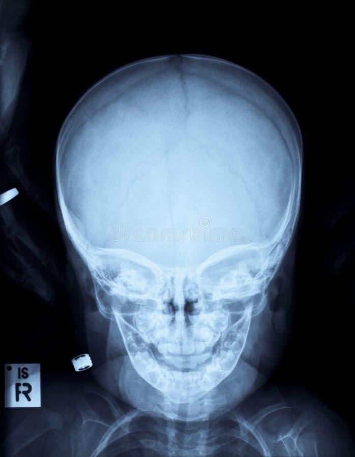 De schedel x-ray beeld van Childs royalty-vrije stock afbeelding