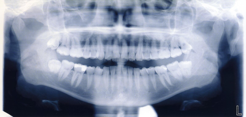 De spruit van de röntgenstraal van menselijke mond en tanden stock fotografie