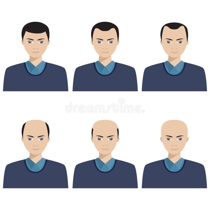 De stadia van het haarverlies en soorten kaalheid royalty-vrije stock afbeelding
