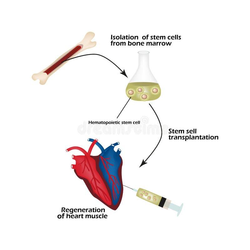 De stamcellen van beendermerg wordt gebruikt om de hartspier te regenereren Infographics Vector illustratie vector illustratie