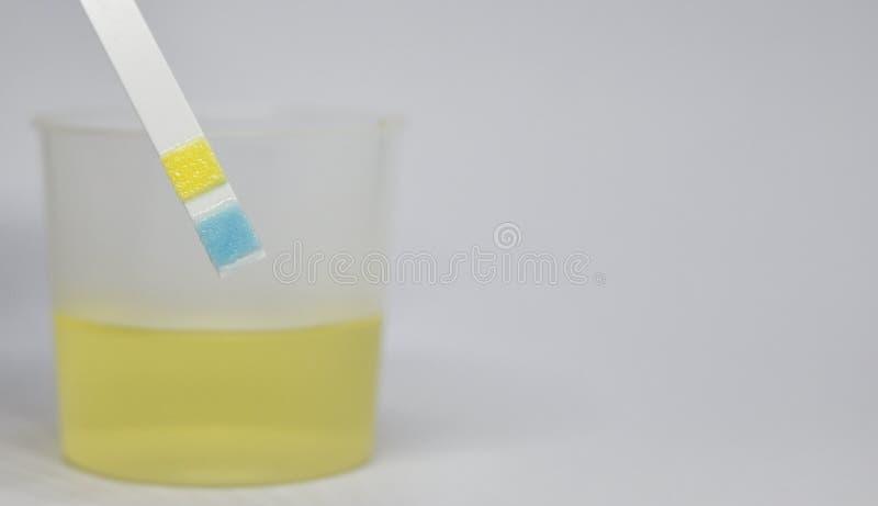 De strook van het urineonderzoek stock foto's