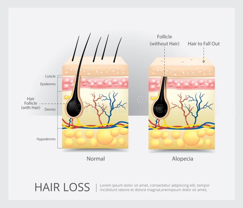 De Structuur van het haarverlies stock illustratie