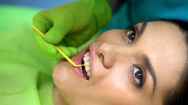 De tand van de tandartsvoorbereiding voor dichtingsproductplaatsing, het professionele werk, close-up royalty-vrije stock foto's