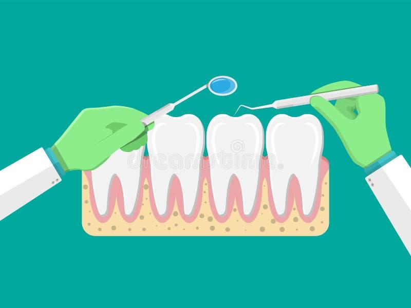 De tandarts met hulpmiddelen onderzoekt tanden royalty-vrije illustratie
