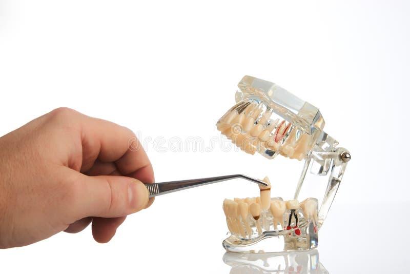 De tandartshanden trekt een tand met tandforceps terug royalty-vrije stock fotografie