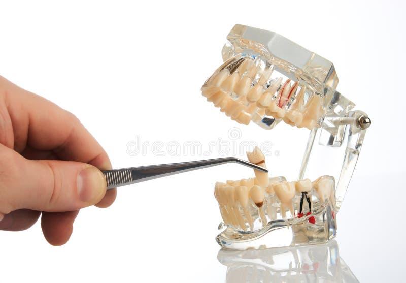 De tandartshanden trekt een tand met tandforceps terug stock afbeeldingen