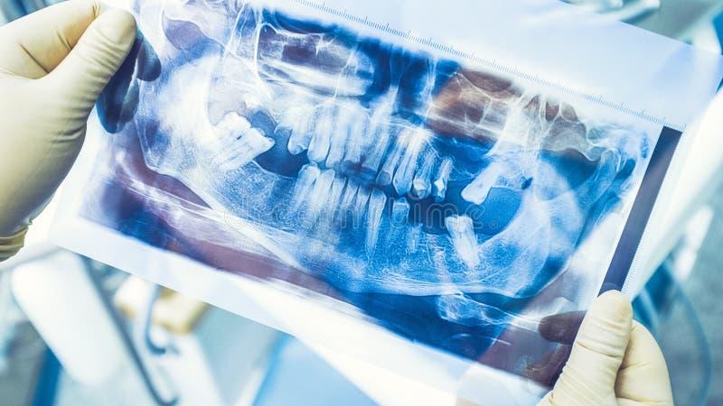 De tandimplant panoramische röntgenstraal van de therapiechirurgie royalty-vrije stock afbeelding