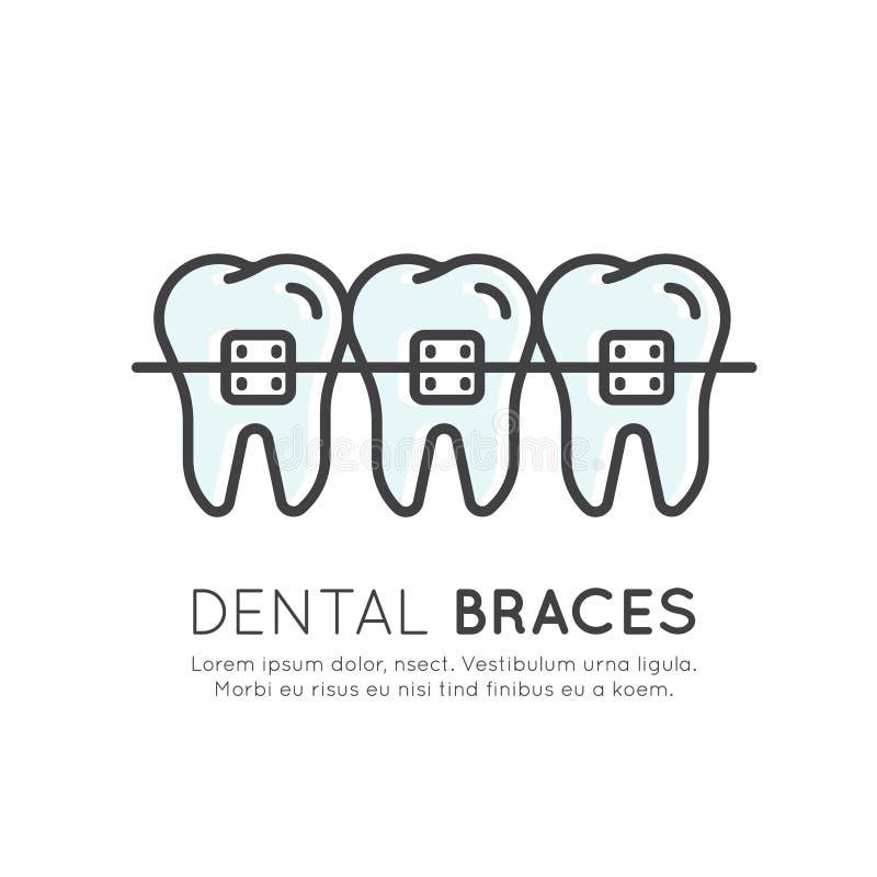 De tandtand bindt Installatieproces, Esthetica, Orthodontist vast royalty-vrije illustratie
