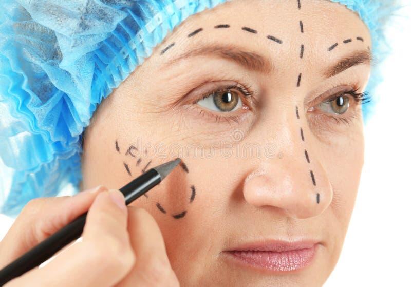 De tekeningstekens van de chirurgenhand op vrouwelijk gezicht voor verrichting royalty-vrije stock foto