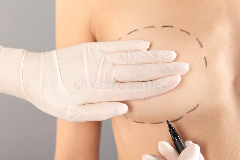 De tekens van de artsentekening op de borst van de patiënt voor kosmetische chirurgieverrichting tegen grijze achtergrond royalty-vrije stock afbeeldingen
