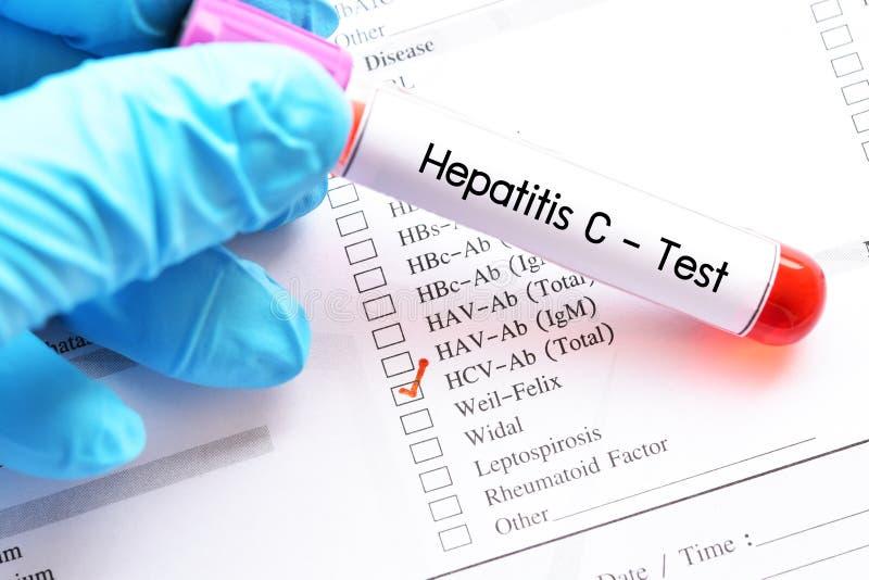De test van het hepatitisc virus stock afbeelding