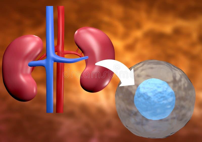 De therapie van de stamcel wordt gebruikt om zieke nier terug te krijgen die stock illustratie