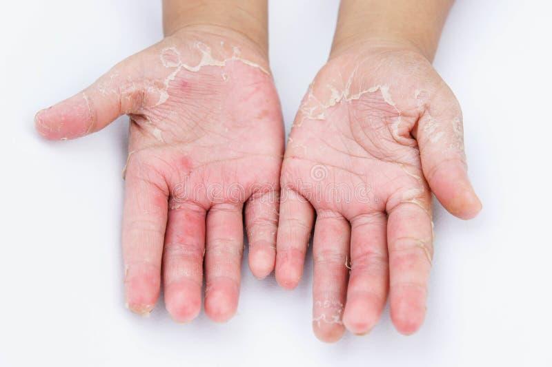 De torra händerna, peel, kontaktdermatit, svamp- infektioner, hud inf royaltyfri bild