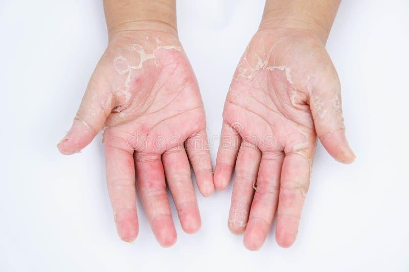 De torra händerna, peel, kontaktdermatit, svamp- infektioner, hud inf royaltyfria foton