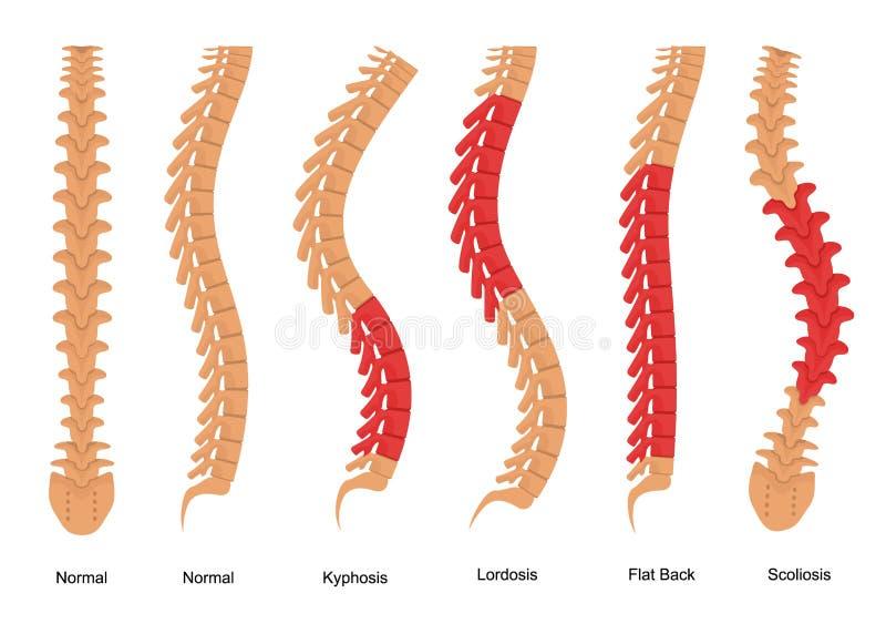 De Types van osteoporosebeen de Affiche van de het Conceptenkaart van Infographics Vector stock illustratie